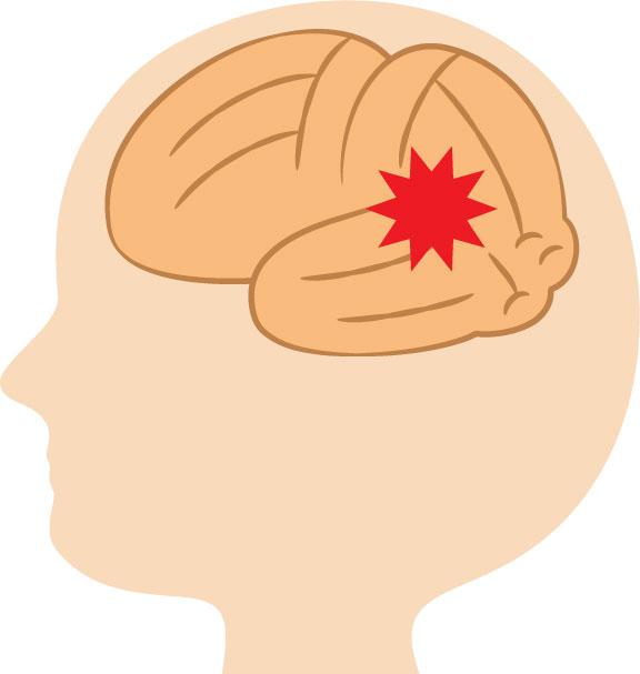 脳血管性認知症とは